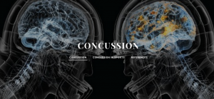 Concussions by Eoghan